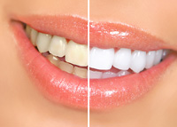 Easton Teeth Whitening - Easton MD Dentist